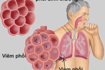 Triệu chứng và phương pháp điều trị các dạng viêm phổi