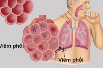 Bệnh viêm phổi mắc phải cộng đồng