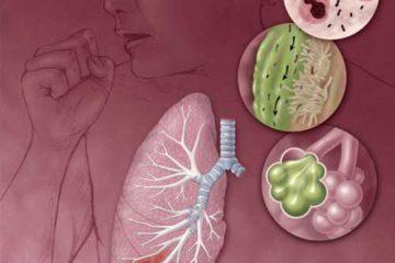 Bệnh viêm phổi mắc phải ở cộng đồng theo hướng dẫn của Bộ Y Tế