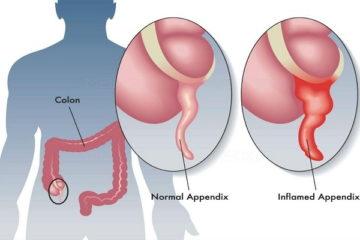 Những triệu chứng viêm ruột thừa cần phẫu thuật ngay