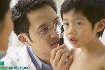 Bệnh viêm tai giữa cấp tính xung huyết