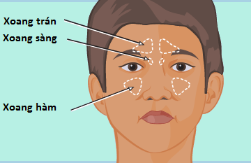 Bệnh viêm xoang ở trẻ nhỏ, dấu hiệu và những lưu ý khi điều trị