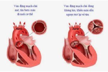 Việt Nam: Tái tạo van động mạch chủ bằng màng tim tự thân