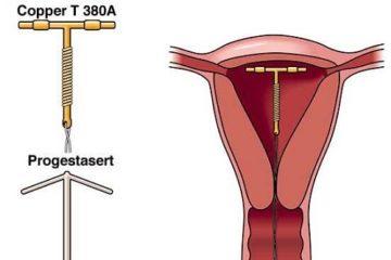 vòng tránh thai