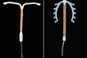 Những điều cần biết trước khi đặt vòng tránh thai