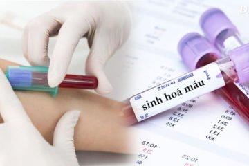Xét nghiệm sinh hóa Carboxyhemoglobin trong máu
