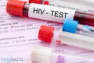 Xét nghiệm mỗi năm một lần sẽ loại bỏ được HIV?