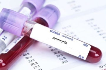 xét nghiệm amoniac máu