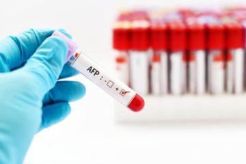 xét nghiệm sinh hóa alpha fetoprotein