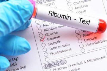xét nghiệm sinh hóa albumin