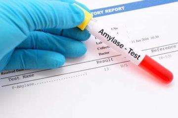 xét nghiệm sinh hóa amylase