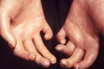 Bàn tay bệnh nhân bị xơ cứng bì