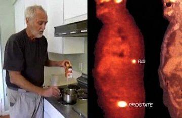 Xôn xao tin baking soda và mật mía chữa khỏi ung thư