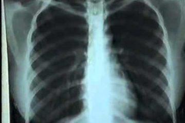X- quang chẩn đoán bệnh phổi