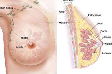 Người nhiều mô bào đặc ở vú nguy cơ ung thư cao hơn người thường