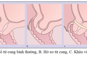 Giải thích về hiện tượng hở cổ tử cung dẫn đến sảy thai