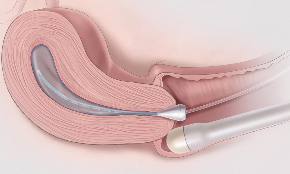 Hở cổ tử cung gây sẩy thai nhiều lần