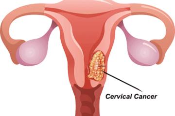 Dấu hiệu và triệu chứng ung thư cổ tử cung