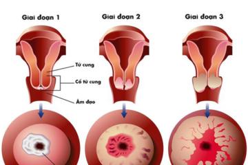 Ba căn bệnh ung thư có thể chữa khỏi nếu được tầm soát sớm