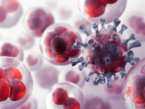 Những loại ung thư khó phát hiện sớm