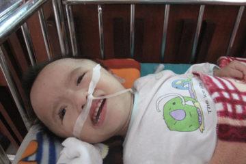 Bé gái bại não bị bố mẹ bỏ rơi tại bệnh viện