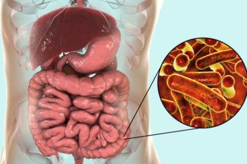 Triệu chứng của lỵ trực khuẩn