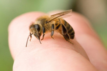 Ong đốt phải xử trí như thế nào?