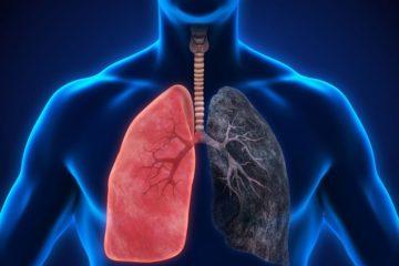 Những điều cần kiêng kỵ khi bị ung thư phổi