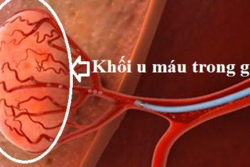 Hình ảnh bệnh lý u gan trên siêu âm