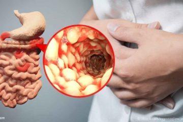 Bệnh học bệnh Crohn