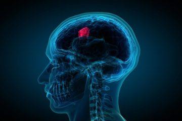 Các thể ung thư não