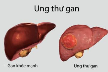 Các phương pháp điều trị ung thư gan nguyên phát