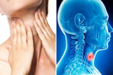 Bệnh ung thư vòm mũi họng