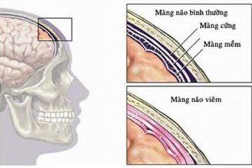 Viêm màng não mô cầu – các triệu chúng và phương pháp phòng bệnh