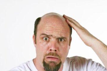 Nguyên nhân hói đầu ở đàn ông
