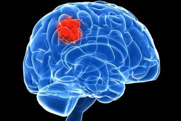 Triệu chứng chẩn đoán, xử trí ngoại khoa bệnh u não