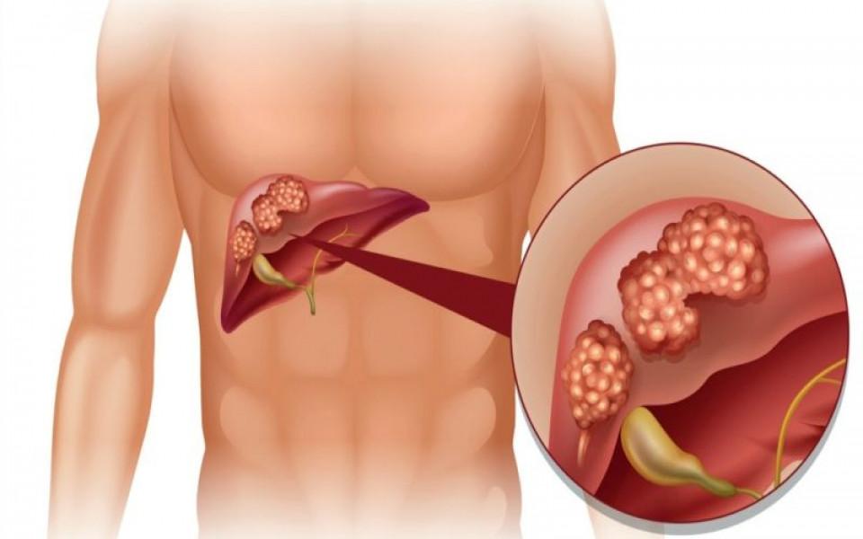 Lá gan bị Ung thư