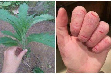 Sử dụng cây ngải dại chữa nấm – bạn đã biết chưa?