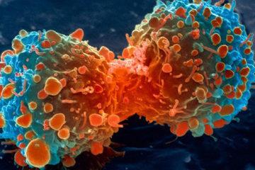 Dấu hiệu báo động tiềm ẩn nguy cơ bệnh ung thư