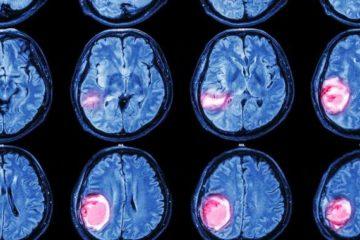 Bệnh u não nguyên phát