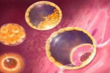 ung thư nhau thai