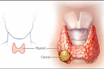 Bệnh ung thư tuyến giáp