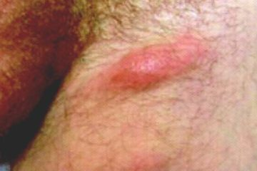 Điều trị bệnh Hạ Cam theo hướng dẫn của Bộ Y tế