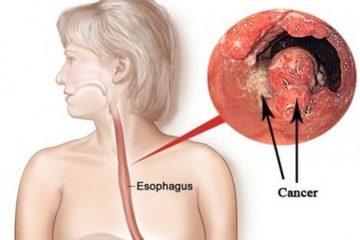 Bệnh ung thư thực quản