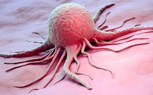 tế bào ung thư