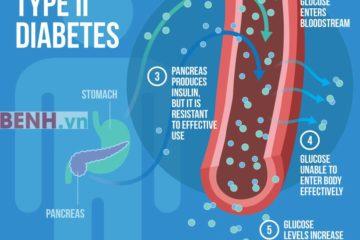 Nguyên nhân và cơ chế bệnh sinh bệnh đái tháo đường
