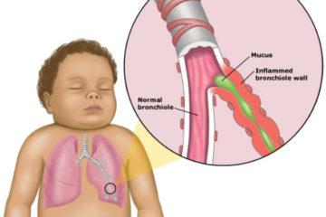 Nguyên nhân và các yếu tố nguy cơ gây viêm phế quản trẻ em