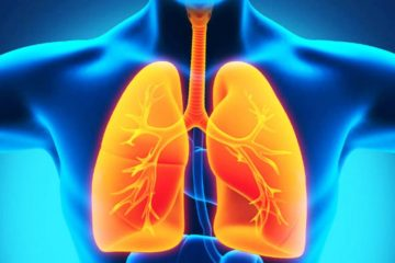 Hiểu đúng về viêm phổi như thế nào?