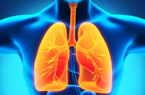 viêm phổi