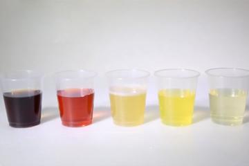 màu sắc nước tiểu